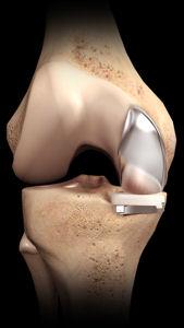 James Lewis Consultant Orthopaedic Surgeon Partial Knee
